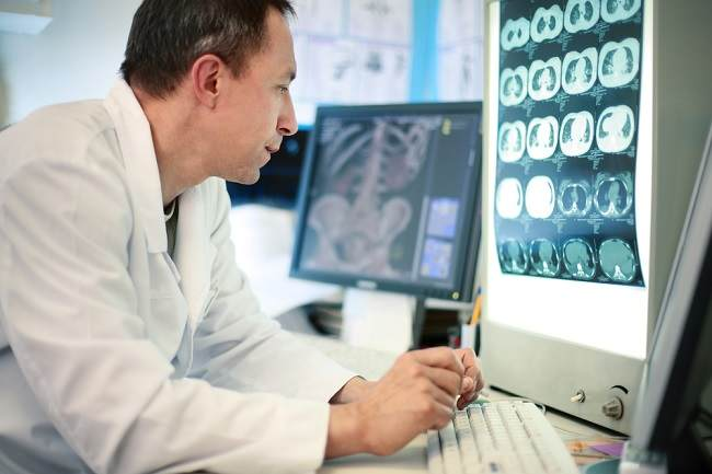 Memahami Penyebab dan Gejala Peningkatan Tekanan Intrakranial - Alodokter