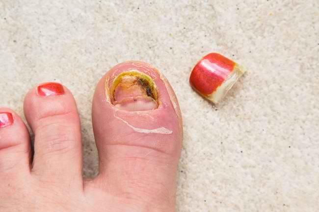 Penyebab Kuku Kuning dan Penanganannya - Alodokter