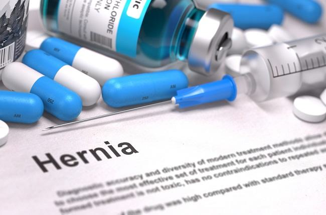 Treatment of a hernia without surgery