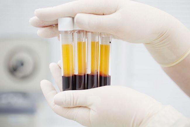 Mengenal Plasma Darah dan Fungsinya Bagi Tubuh - Alodokter