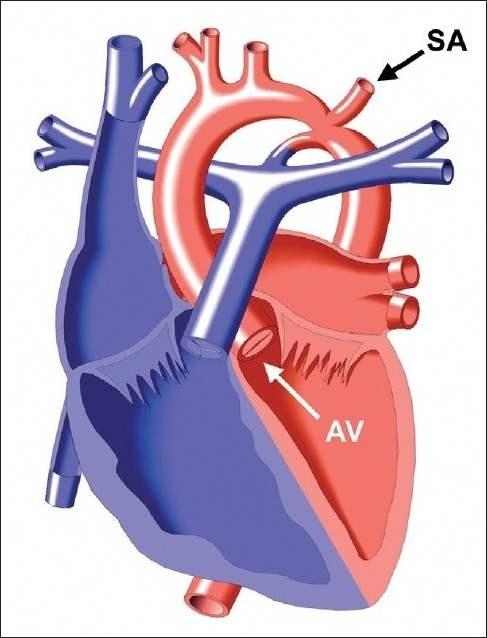 Koarktasio aorta. Sumber: anonim, Openi, 2011.