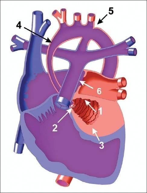 Sindrom hipoplasia jantung kiri. Sumber: anonim, Openi, 2011.