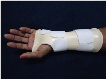 Bidai imobilisasi pergelangan tangan. Sumber: anonim, Openi, 2012.
