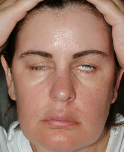Paralisis nervus fasialis pada MG. Sumber: anonim, openi, 2008.