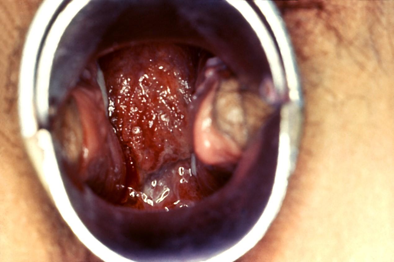 penyakit radang panggul - 2