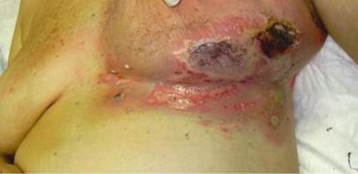 Kanker payudara. Sumber: anonim, Openi, 2010.