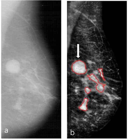 Kanker Payudara - mamogram. Sumber: Kim DH, Openi, 2013