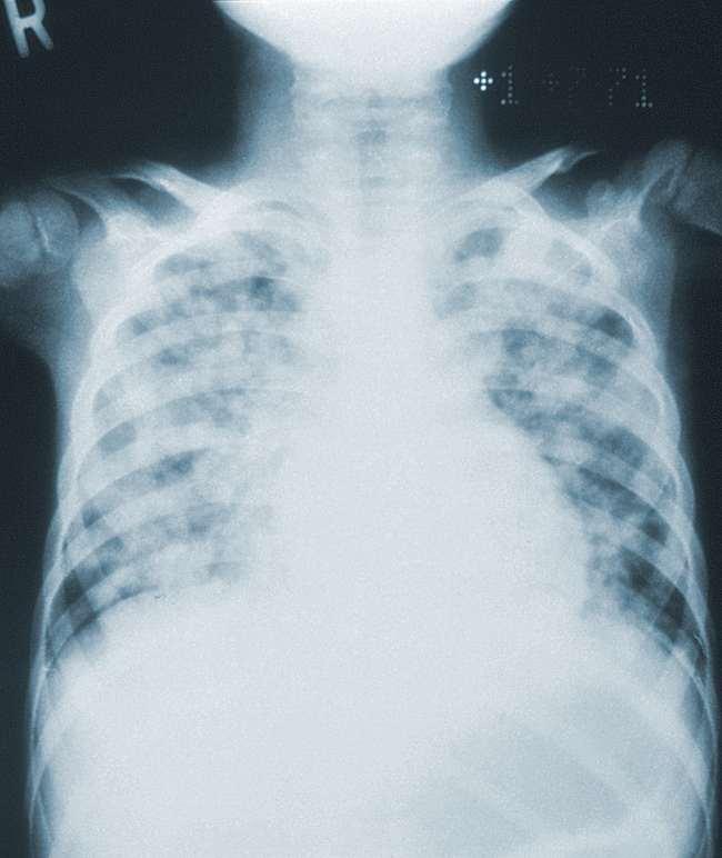 Pneumonia varisela. Sumber: JD Meyers, PHIL CDC, 1973.