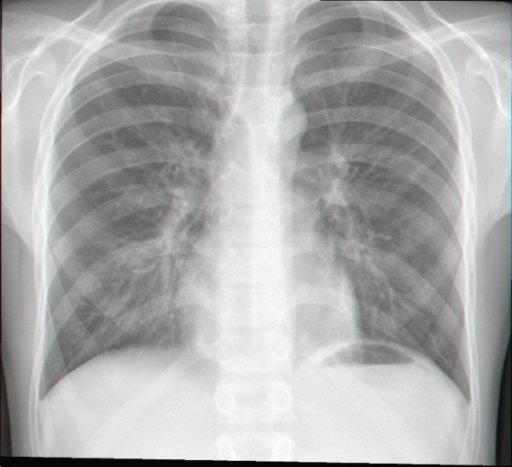 Gambaran X-ray Pertussis. Sumber: anonim, Openi, 2009.