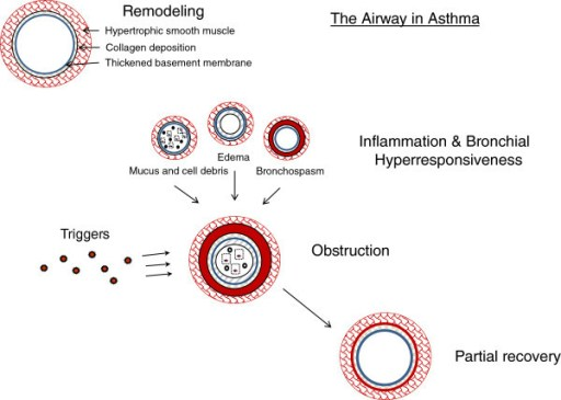 Patofisiologi eksaserbasi asma. Sumber: anonim, Openi, 2012.