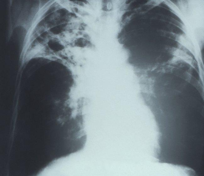 Gambaran infiltrat paru pada TB paru bilateral. Sumber: anonim, PHIL CDC, 1972.