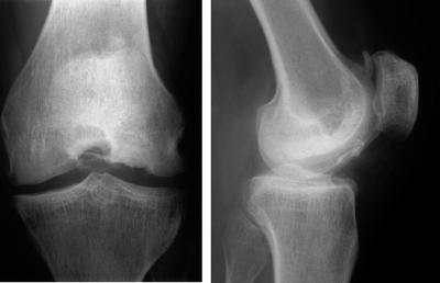Osteartritis lutut kiri pada pasien usia 40. Sumber: anonim, Openi, 2009.