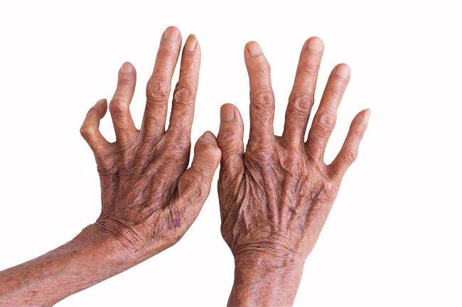 Leprosy - alodokter