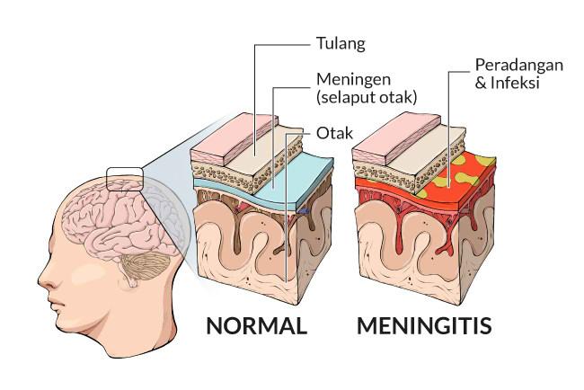 Meningitis Gejala Penyebab Dan Mengobati Alodokter