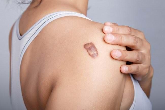 berbagai jenis jaringan parut pada kulit dan cara mengatasinya - alodokter