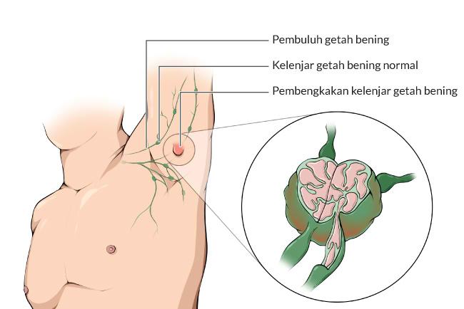 Obat Jelly Gamat Untuk Kelenjar Getah Bening