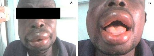 Angioedema wajah akibat alergi makanan. Sumber: anonim, Openi, 2009.