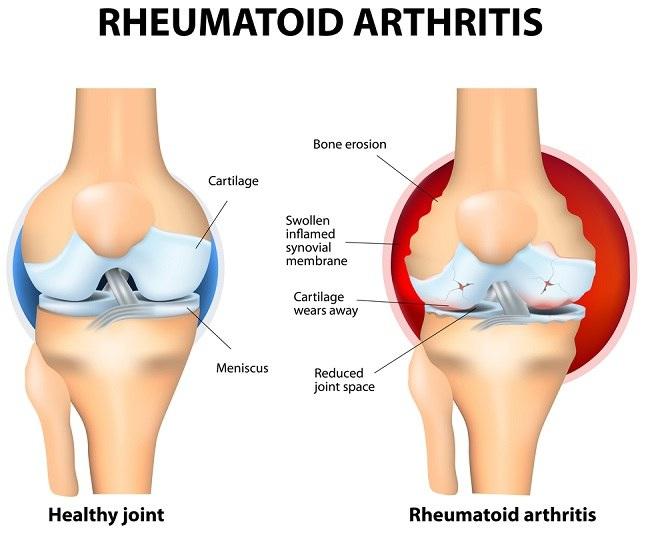 Ahol a rheumatoid arthrosis kezelésére