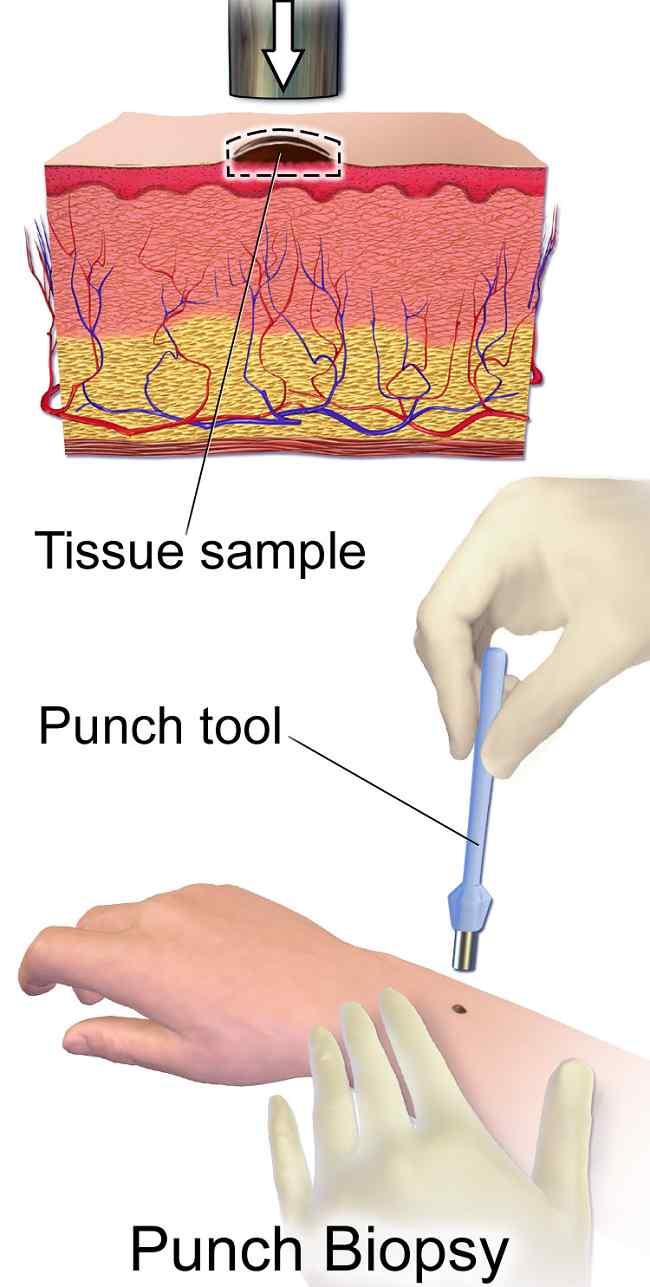 Gambar: Punch Biopsy. Sumber: BruceBlaus, Wikimedia commons, 2017.