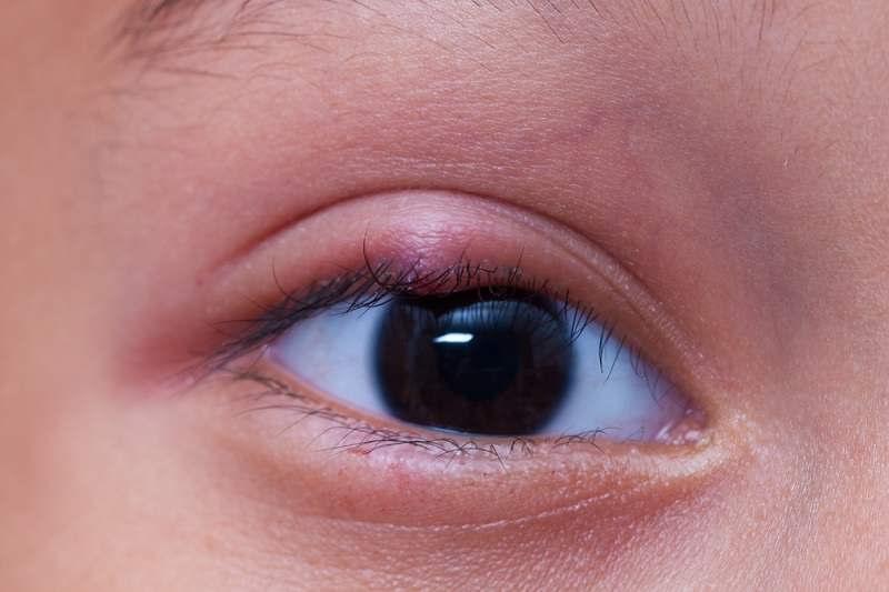 Pilihan Obat Mata Bengkak Sesuai Penyebabnya - Alodokter