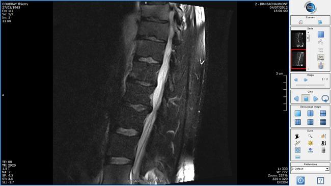 Gambaran MRI herniasi diskusi L4-L5. Sumber: anonim, Wikimedia commons, 2012.