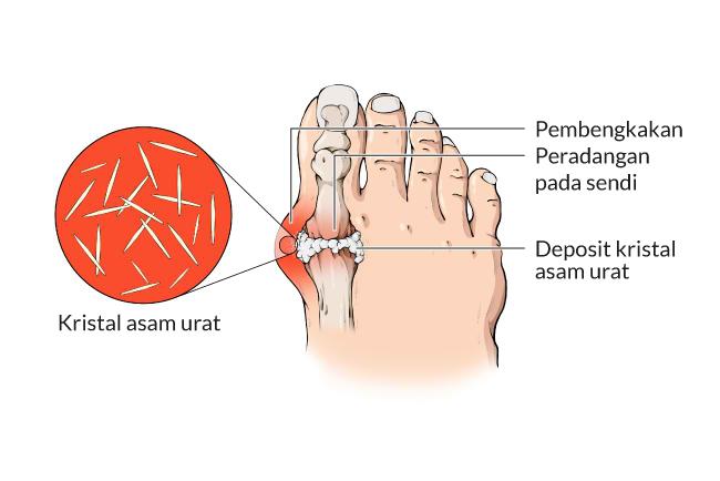 Image result for Mampu Meredakan Rasa Nyeri Asam Urat