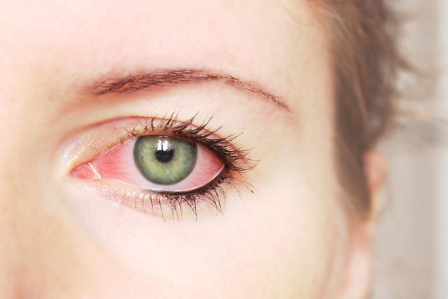medicine for red eye