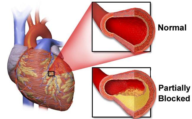 Penyakit jantung koroner. Sumber: BruceBlaus, Wikimedia commons, 2016.