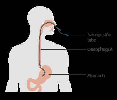 Nasogastric Tube. Sumber: Cancer Research UK/Wikimedia Commons