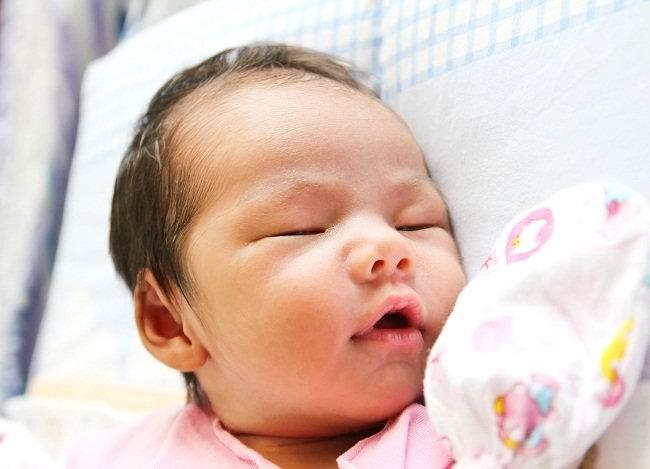 bayi kuning apakah kondisi ini berbahaya bagi si kecil - alodokter