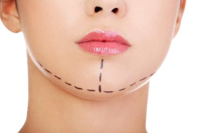 Ketahui 3 Cara Menghindari Operasi Plastik Gagal - Alodokter