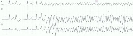 Kompleks ventrikular prematur-ventrikular fibrilasi. Sumber: anonim, Openi, 2011.