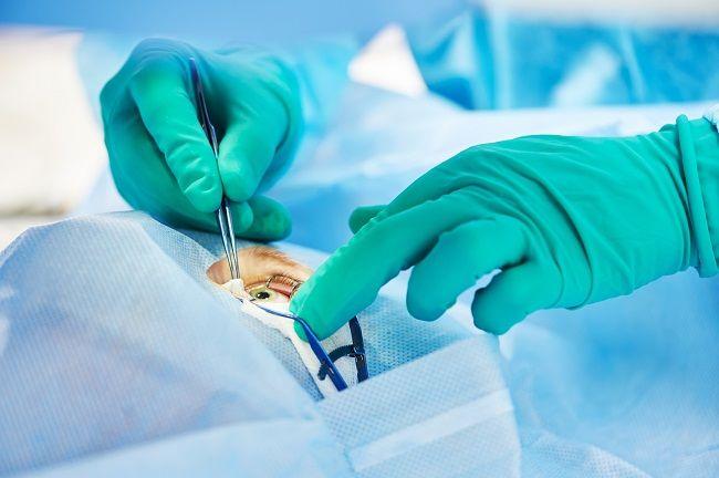 Prosedur Operasi Lasik dan Risikonya - Alodokter