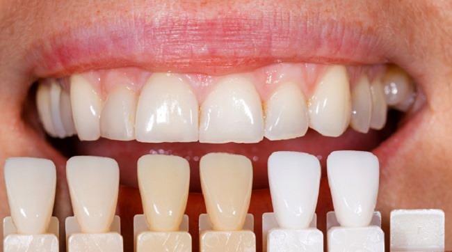 Veneer Gigi, Ini yang Harus Anda Ketahui - Alodokter