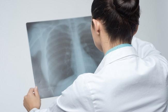 penyebab paru-paru bocor - alodokter