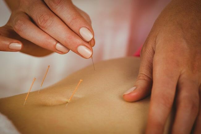 Berbagai Terapi Alternatif yang Berpeluang Meningkatkan Kesuburan