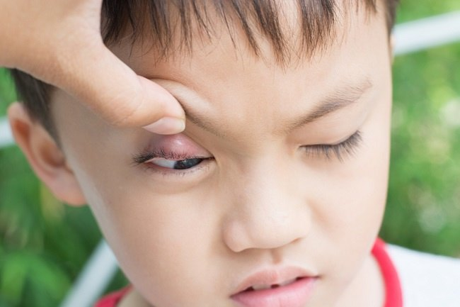 Ini Penyebab dan Cara Mengatasi Bintitan pada Anak - Alodokter