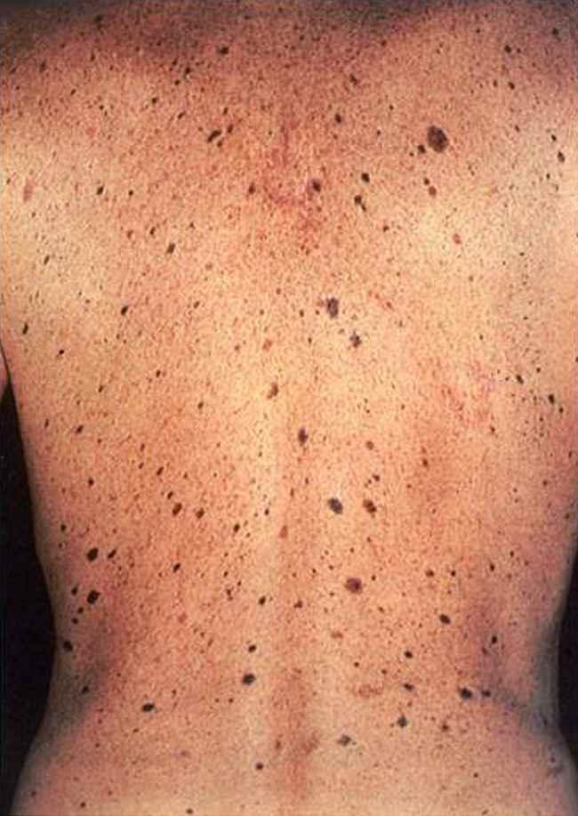 Nevi displastik multipel: faktor risiko melanoma. Sumber: C Washington, M Saraiya, PHIL CDC, 2007.