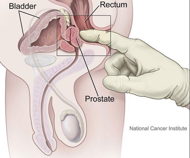 B prostatitis alatt