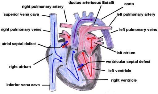 Transposisi arteri besar. Sumber: anonim, Openi, 2013.