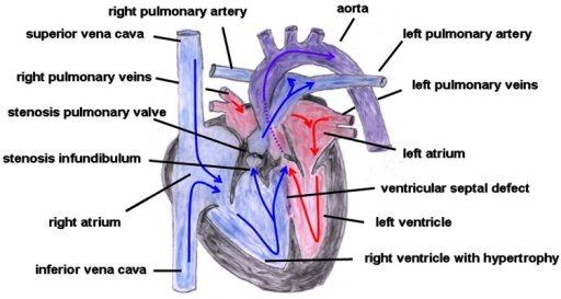 szívfájdalom a dohányzás kezelésétől