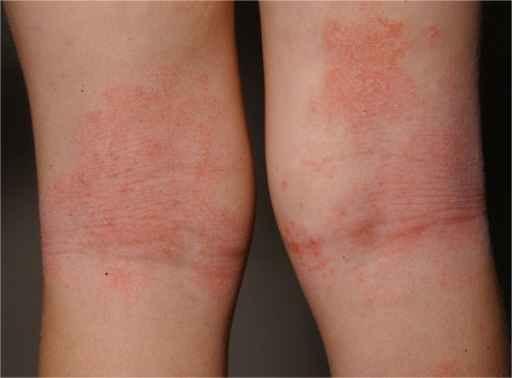 Atopik dermatitis. Salava A., Openi 2014.
