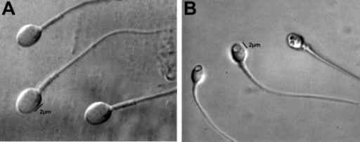 Analisis morfologi sperma. Oliveira JB, Openi 2010.