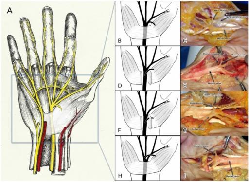 Gambar 1. Variasi Percabangan N. Medianus. (A)Tampak ilustrasi anatomi nervus medianus. (B,C) Cabang thenar tipe ekstraligamentosa pada sisi radial. (D,E) Cabang thenar tipe subligamentosa. (F,G) Tipe transligamentosa. (H,I) Tipe ekstraligamentosa dengan cabang pada sisi ulnar. Sumber: Henry BM, Openi, 2015.