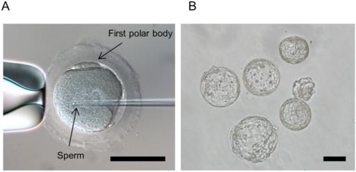 IVF dengan intracytoplasmic sperm injection Sumber: Openi, 2014