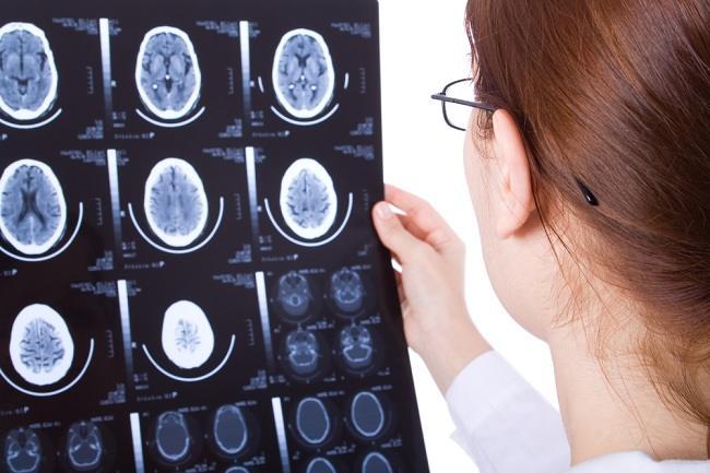 Kondisi yang Dialami Saat Gegar Otak - Alodokter