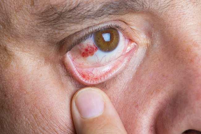 Waspadai Stroke Mata, Kenali Penyebab dan Pengobatannya