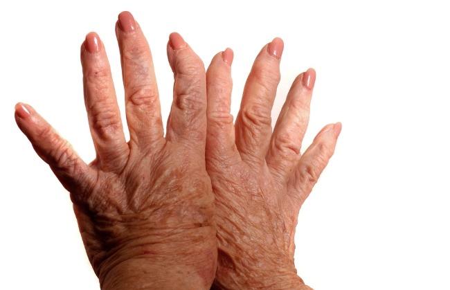 Scleroderma-alodokter