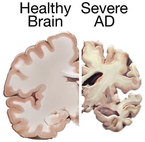 Atrofi otak pada penyakit Alzheimer berat. Sumber: WIkimediacommons, 2011