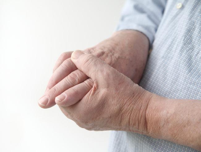 penyebab tangan kesemutan tidak sesepele kelihatannya - alodokter